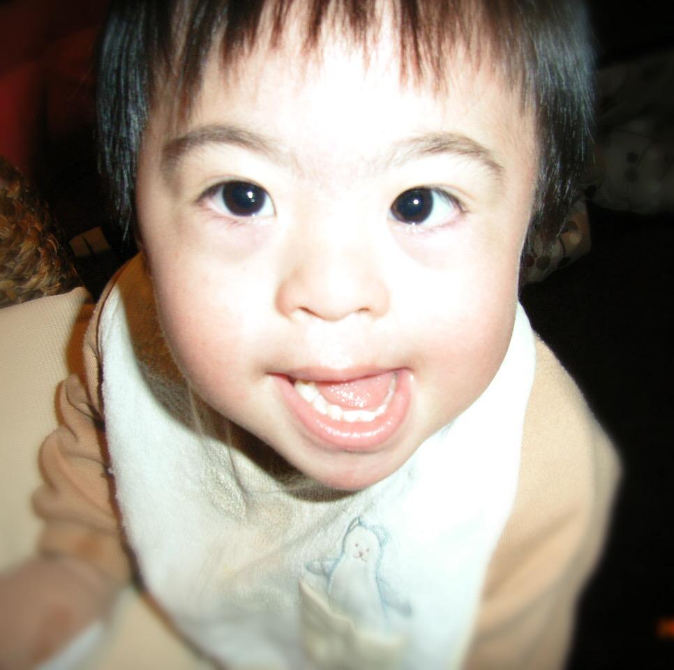 特徴 ダウン症 新生児 ダウン症の赤ちゃんの判断は?代表的な身体的・性格的特徴